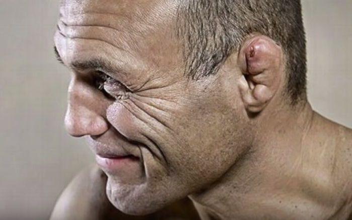 """Kako sprečiti """"rvačke uši""""... (uznemirujući sadržaj)"""